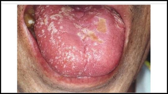 コロナ 舌 が 痺れる